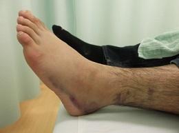 足首捻挫 腫れ