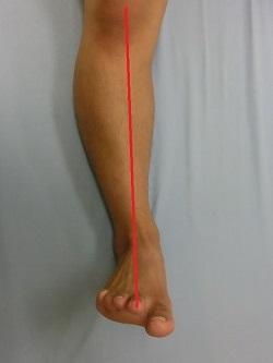 下腿軸(正常)
