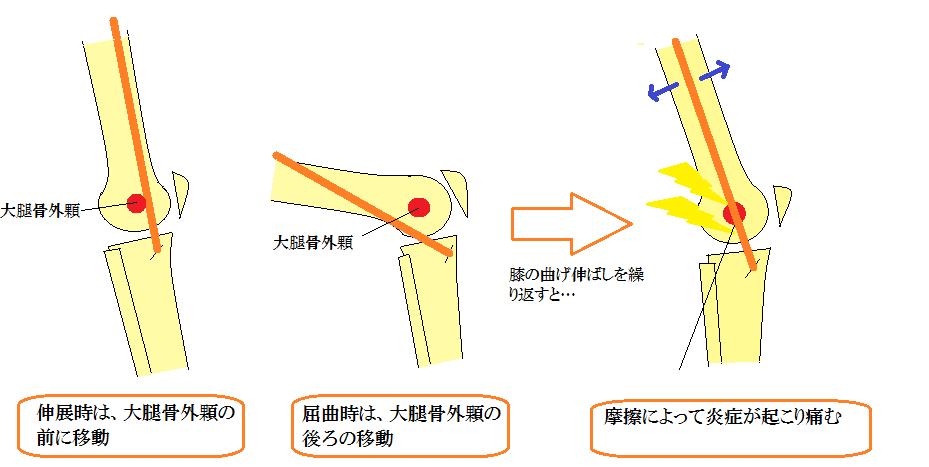 腸脛靭帯の動き