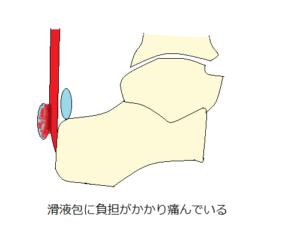 アキレス腱滑液包炎