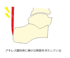 アキレス腱炎