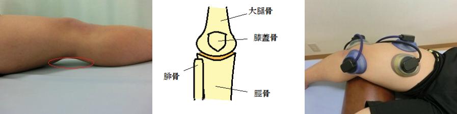 膝痛み3連