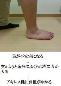 足の不安定性