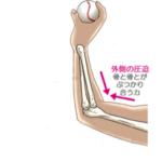 野球肘外側型離断性骨軟骨炎とは?原因・症状・治療を解説