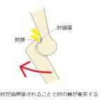 後方型野球肘。原因・種類・治療を解説