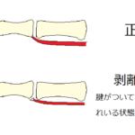 剥離骨折の治療法について