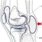 膝裏が痛いベーカー嚢腫とは?原因・症状・治療などを解説